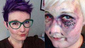 Kathryn Cartwrightová (†28) svůj boj s rakovinou dokumentovala na instagramu.