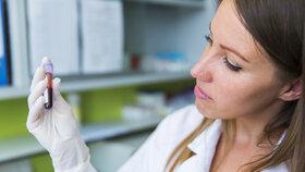 Mají se lidé s krevní skupinou A víc bát koronaviru? V Česku je tento typ nejrozšířenější!