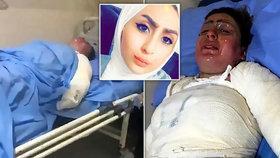 Hrůzné fotky mladé Iráčanky: Manžel ji polil benzinem a zapálil.