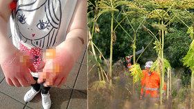 Hrozba jedovatého bolševníku je zpět: Nejnebezpečnější rostlina způsobuje popáleniny třetího stupně!