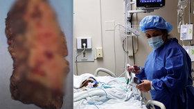 Přeživší koronaviru musela podstoupit oboustrannou transplantaci plic, koronavirus jí v plicích udělal díry