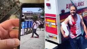 Muž (36) bránil před násilníky ženu: Zabodli mu do hlavy nůž, chlubil se tak před kamerami!