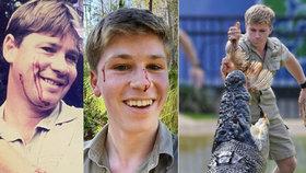 Syn Steva Irvina následuje šlépěje otce: Robert (16) se pochlubil, že ho kousl had do obličeje