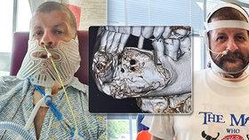 Darrenovi Wilkinsonovi se jeho strach ze zubaře nevyplatil. Nebyl u něj 27 let. Teď nemůže jíst, pít ani mluvit.