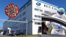 Nemoc covid-19 se objevila v další firmě na Novojičínsku. Hygienici testují 1500 lidí.