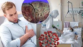Koronavirus způsobuje trvalé ublížení! U řady pacientů přetrvávají příznaky i měsíce po vyléčení.