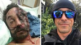 Američan Daniel Sweig trpěl alkoholismem a málem zemřel. Dopravní nehoda ho změnila fyzicky i duševně.