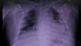 Rakouští i čeští lékaři tvrdí, že u pacientů s koronavirem se ještě 3 měsíce po propuštění z nemocnice vyskytuje poškození plic, (ilustrační foto).