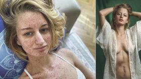 Fotografka slavných Lucie Levá (28) bojuje s rakovinou tlustého střeva.