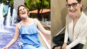 Žena (41) má na obličeji velký výrůstek: Nenechala si jím ovlivnit život a je velmi optimistická.