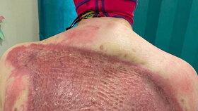 Přeživší výbuchu sopky Stephanie Browittová na sociálních sítích sdílí svou léčbu.