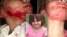 Dívenka si hrála s dezinfekcí na ruce, ta vzplanula! Je zjizvená od ucha k uchu!