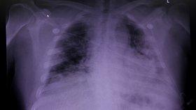 Plíce pacienta s nemocí covid-19.