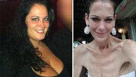 Obézní máma čtyř si nechala odstranit žaludek: Teď je z ní anorektička a unikla smrti!