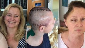 Rakouská turistka na dovolené v Česku vypadla z okna. Utrpěla vážná zranění hlavy.