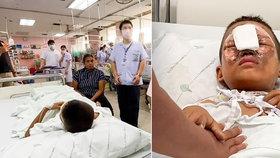 Chlapci (9) explodoval ohňostroj u obličeje: Skočil s vážnými zraněními