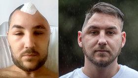 Brutální útok kvůli boxerskému zápasu: Muž (25) přišel o kus lebky!