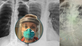 Plíce po covidu-19 jsou víc zničené, než plíce letitých kuřáků, varuje lékařka.