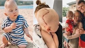 Malý Flex Dan se narodil s takzvanou kraniosynostózou.