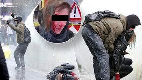 V několika nizozemských městech se protestovalo proti vládním opatřením v boji s koronavirem. Češka Denisa Š. po zásahu vodním dělem utrpěla zranění hlavy.
