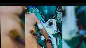 Transplantace plic se světovým rekordem v délce pobytu na mimotělní podpoře.