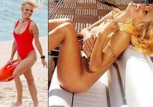 Pamela Anderson se vyléčila ze žloutenky.