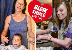 První rok charitativního projektu deníku Blesk a Nadačního fondu J&T Blesk Srdce pro vás: Takhle funguje vaše pomoc!