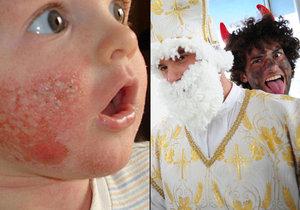 Čert v Mikulášském průvodu v Šumperku pomazal děti leptavou mastí! (ilustrační foto)