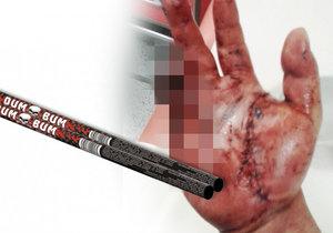 Muži (23) ve Frenštátě bouchla petarda v ruce: Má těžké zranění ruky a obličeje