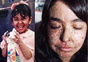 Andrea Monroy ze San Diega v Kalifornii trpí vzácnou chorobou. Musí se chránit před slunečními paprsky, které by jí způsobily rakovinu kůže.