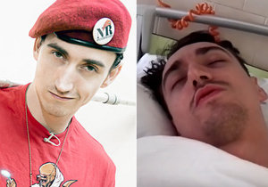 Jednoho z nejslavnějších českých youtuberů Martina Rotu čeká amputace nohy.