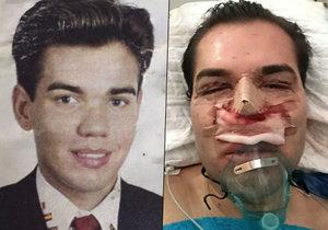 """Původně to byl celkem pohledný muž. Znetvořil s eplastickými operacemi a o svou """"krásu"""" možná kvůli infekci přijde úplně!"""