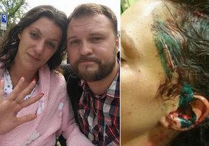 První foto herečky Veroniky Zelníčkové po propuštění z nemocnice po útoku