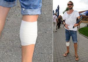 Proč má Bořek Slezáček ovázané a oholené nohy?