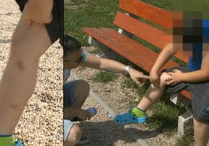 Chlapec tvrdí, že ho ostatní děti na táboře šikanovaly.