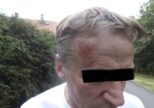 Josef Šebek, zastupitel města Jirkova za Stranu svobodných občanů obvinil strážníky z napadení. To se nakonec otočilo proti němu