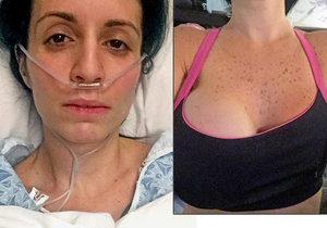 Kvůli piercingu v bradavce málem umřela a museli jí uříznout prso.