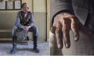 Karel Dobrý měl problémy s alkoholem. Stály ho malíček a málem i život!