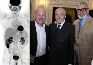Nová léčba vyléčí rakovinu, jakou měl i Karel Gott, do tří měsíců.