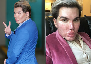 Rodrigo Alves děsí fotkou po kosmetické úpravě.