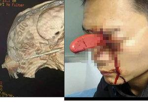Číňanovi manželka zabodla nůž do oka. Jako zázrakem se mu nic vážnější nestalo.