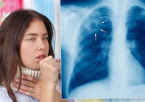 Tuberkulóza je smrtelná nemoc.