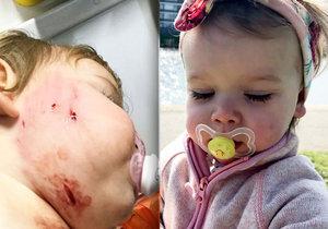Pes napadl holčičku: Majitel tvrdil, že je přátelský.