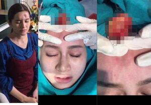 Nong Guang (41) se zanítilo čelo po plastickém zákroku. Lékař z něj vymačkal velké množství hnisu.