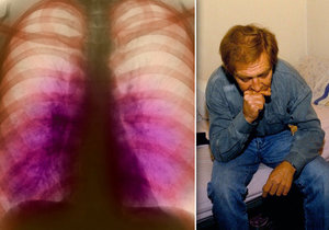 Tuberkulóza zachvátila jižní Moravu: Počet nemocných roste, roznáší ji vězni a zahraniční dělníci