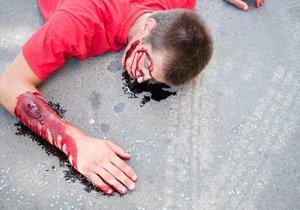 V Havířově neznámý řidič srazil cyklistu a od vážně zraněného muže ujel. Ilustrační foto