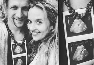 Tomáš Klus se pochlubil fotkou z ultrazvuku.