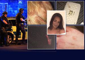 Jsem pokrytá lidskou kůží a tělními tekutinami: Přeživší oběť sdílela otřesné fotografie na Facebooku.