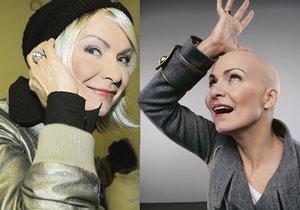 Anna K. o boji s rakovinou: Ztráta vlasů je to nejmenší.