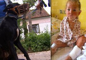 Labrador pokousal holčičku. Lékařka ji kvůli bolestem uspala.